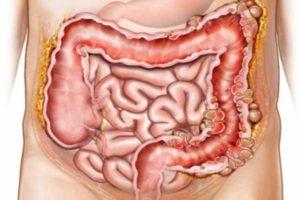 Таблетки от грибка желудка