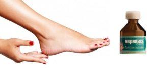 Чем лечить ногти на ногах
