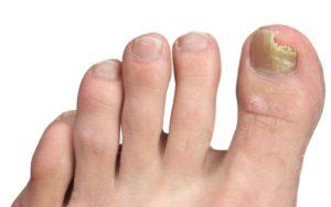 Грибок ног первые симптомы и лечение thumbnail