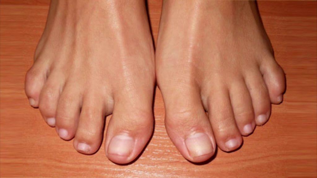 фото нога без ногтей можно разделить северную