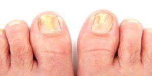 Чем опасен грибок на ногах